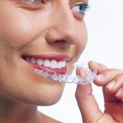 Gerade Zähne durch Invisalign Schiene
