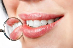 Zähne mit Zahnschmuck