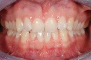Bleaching für schöne weiße Zähne