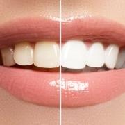 Zahnbleaching bei Dentanova